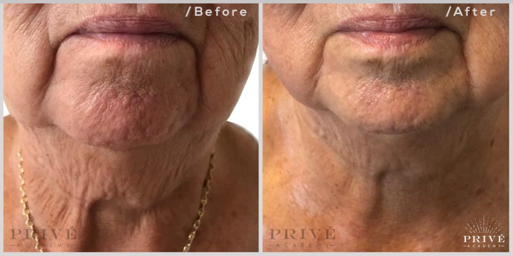 Fibroblast jaw and neck lift
